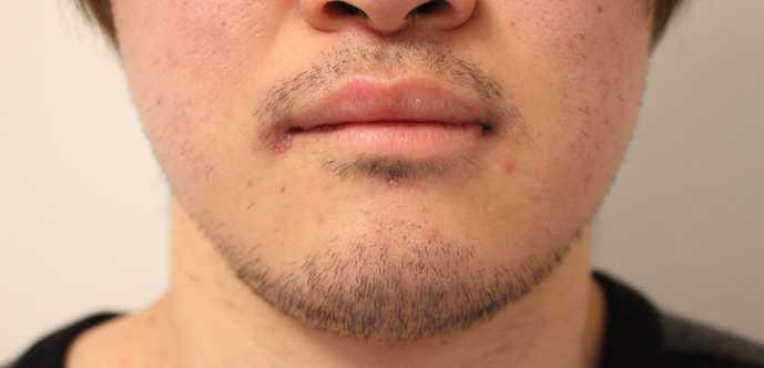 ゴリラクリニックで脱毛する前の髭