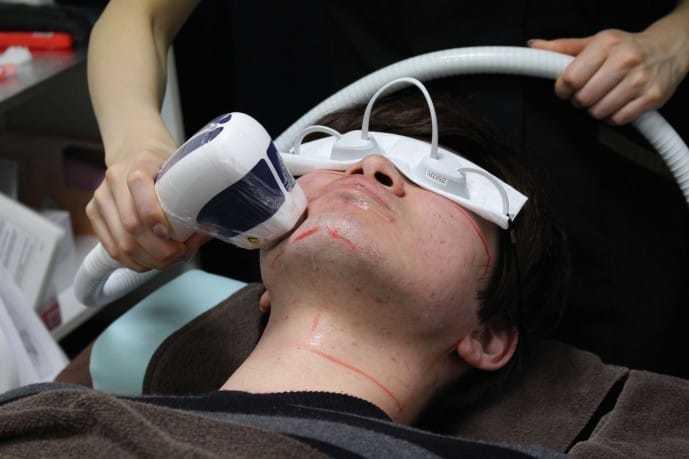 ゴリラクリニック新宿で鼻下を脱毛されている男