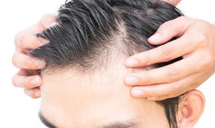 薄毛男性におすすめのヘアスタイル