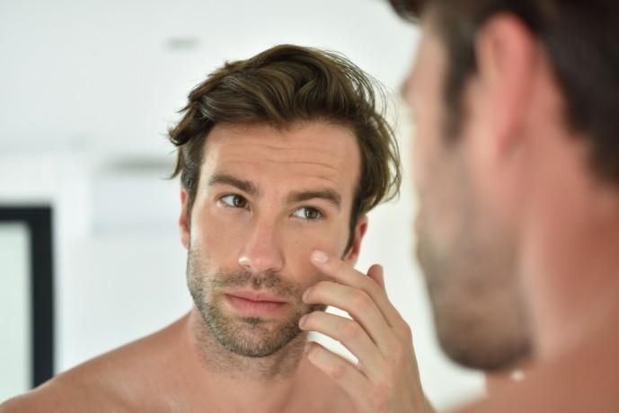 頬にできる大人ニキビの原因