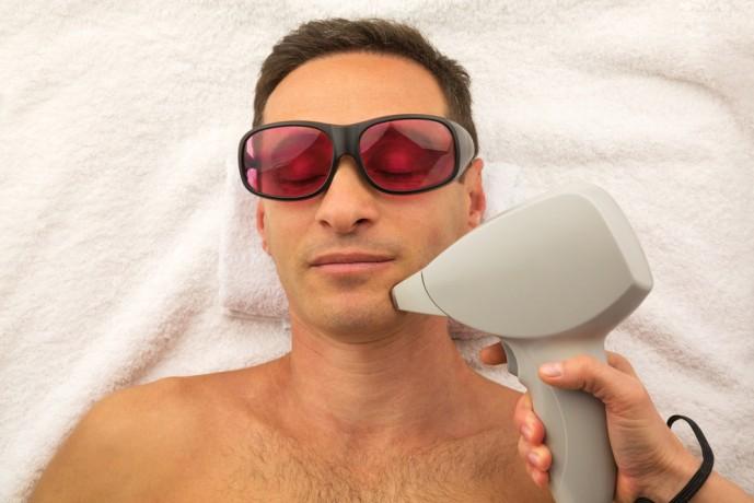 顔のムダ毛脱毛に効果的な医療レーザー脱毛