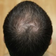 薄毛の種類に合わせた髪型11選!ハゲでも似合うヘアスタイル【メンズ】 | Smartlog