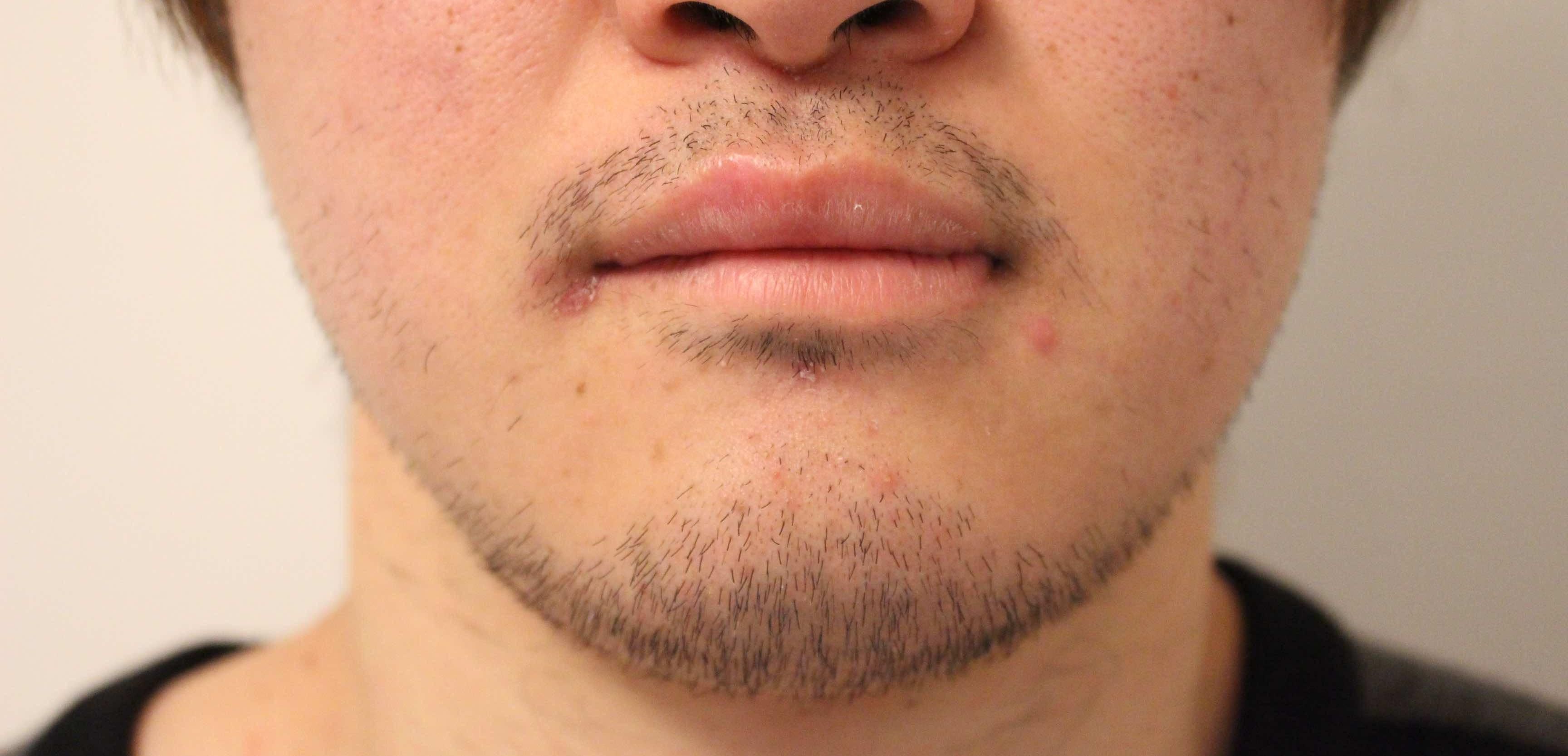ゴリラクリニック新宿本院でメディオスターを使った髭脱毛を体験